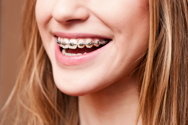 health benefits of braces