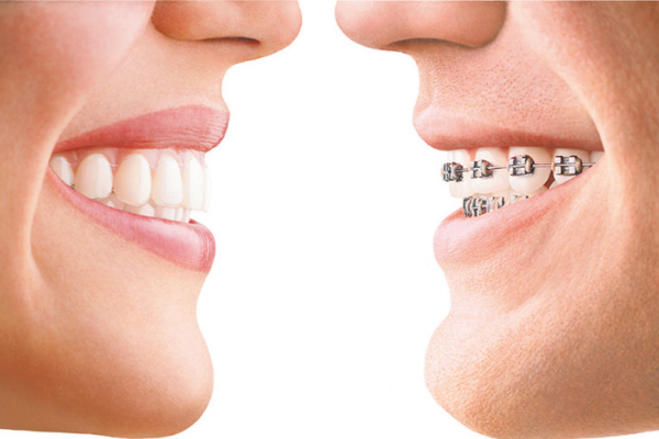 invisible braces invisalign in hull