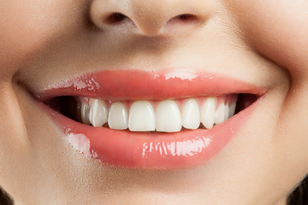 a lady smiling with veneers
