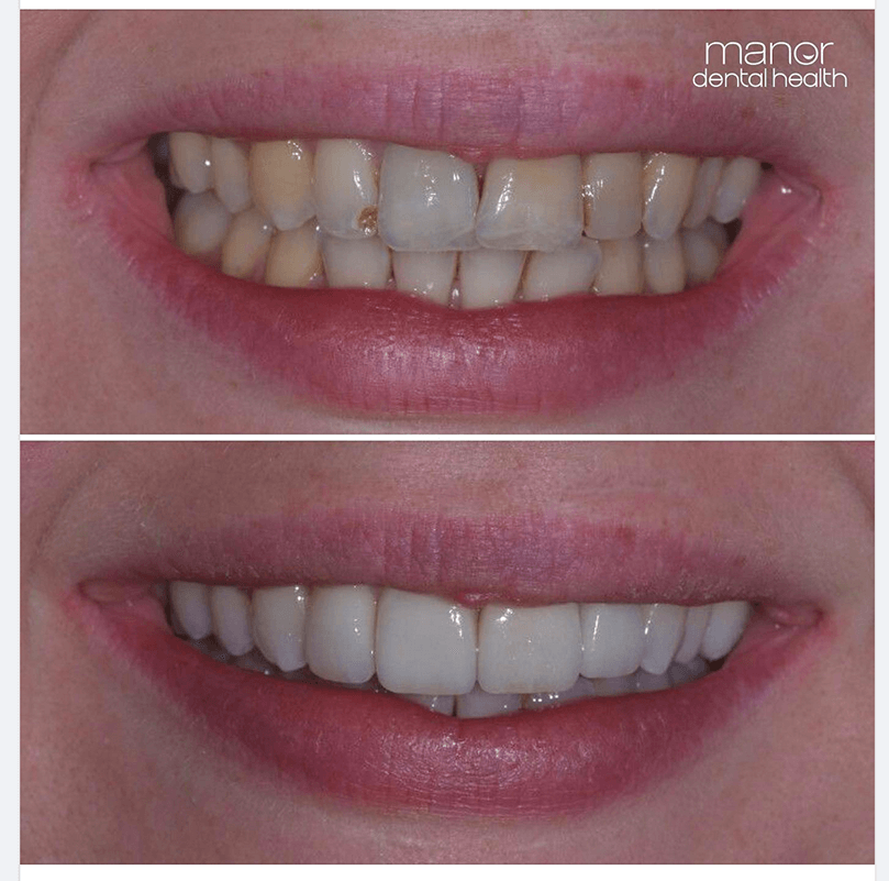 Smile makeover using crowns, veneers and teeth whitening