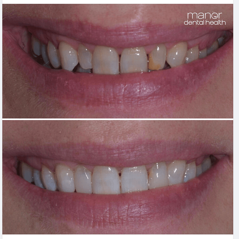 Subtle smile transformation using teeth whitening and composite bonding